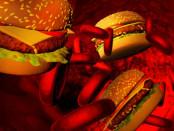 Gefahren durch zu viel Cholesterin
